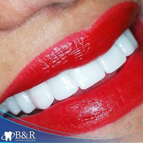 teeth fixed by B&R